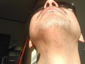 6回目髭脱毛前
