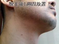 髭脱毛から放置した状態