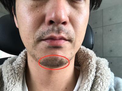 鼻下をみて