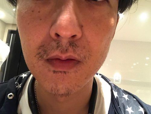 ゴリラクリニック10日経過